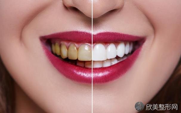 为什么有的人天天刷牙,牙齿还是很黄?这6个是主因!