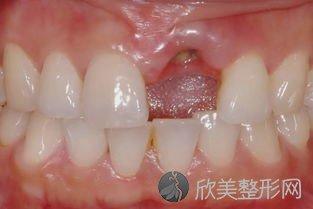 全口牙齿缺失会影响消化功能?别慌,这3种方法可以帮助修复!