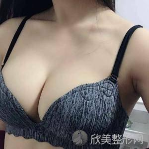 八大处整形医院马晓阳医生怎么样?隆胸三个月术前术后对比图_价格表更新