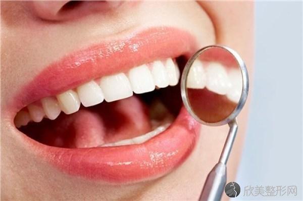 牙齿护理需了解的口腔小常识!