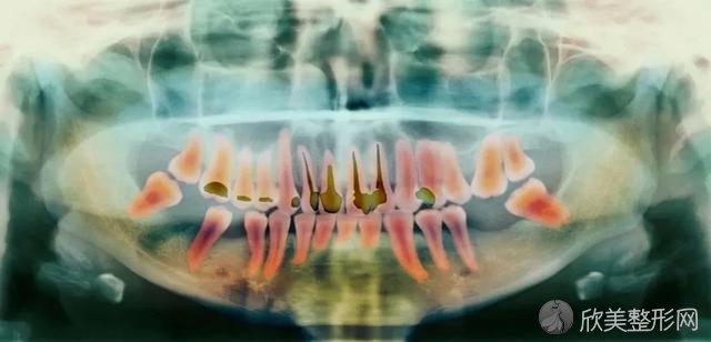 医生建议你根管治疗,而不是补牙,为什么?