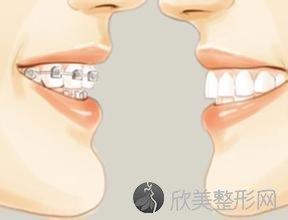 牙齿不齐,不是天生就会有的!