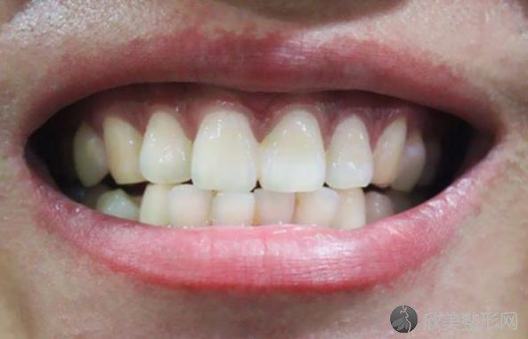 牙齿黄黄的,刷几遍都刷不白,和什么有关?