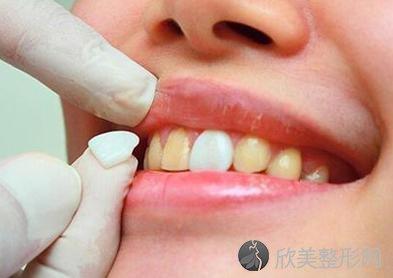 牙齿贴面,真的适合你吗?