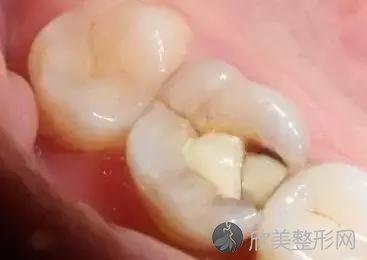 牙齿突然掉了一小块是怎么回事?