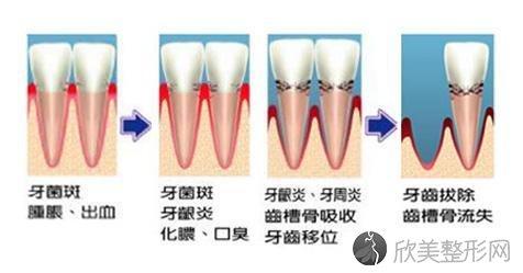 「重在预防」日常牙齿护理的简单方法!