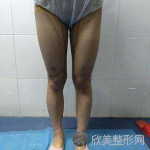 保定蓝山医疗美容医院尹延喜怎么样?吸脂瘦全身术后三个月真实野生反馈