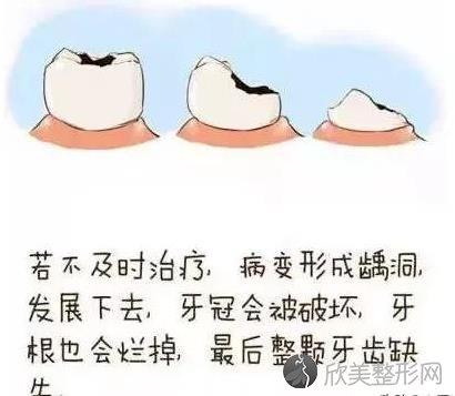 牙齿松动怎么办?这几种方法你要知道!