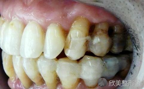 牙周病能够彻底治愈吗?