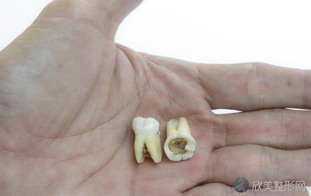 蛀牙(龋齿)是怎么形成的?牙痛时怎么快速止痛?