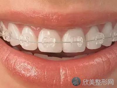 想进行牙齿正畸,你需要先了解牙套!