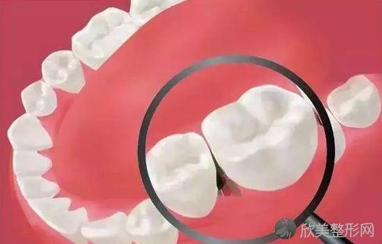 日常牙齿护理很重要,不要让它成为你最痛苦的事!