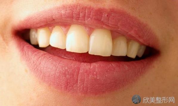 牙齿黄好尴尬?4个妙招助你变白!