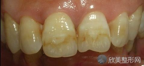 氟斑牙是怎么回事?要怎么治疗?