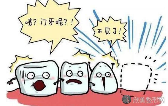 遇到牙齿意外脱落怎么办?