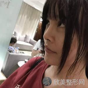 北京304烧伤整形医院褚万立怎么样?精华导入地址_价格在线查询