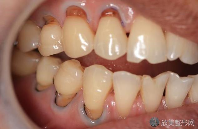 牙齿酸痛到底怎么回事?