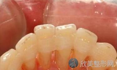 牙齿松动的原因及怎样治疗?