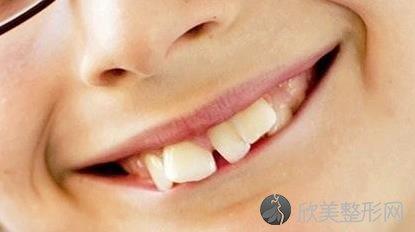 牙齿不齐的表现是什么?有什么危害?