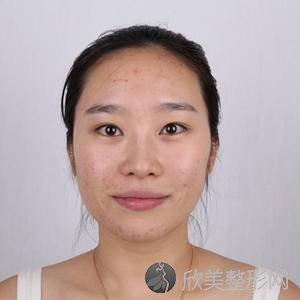 北京304医院陈敏亮疤痕怎么样?祛痘价格表_术前术后对比图