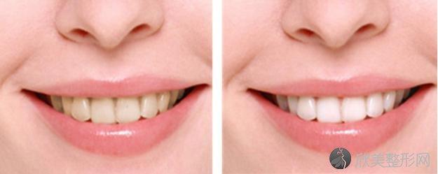 牙黄是什么原因呢?这些妙招助你洁白牙齿!
