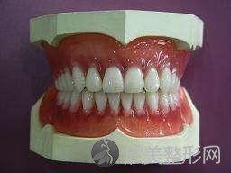 哪种假牙好?选择假牙你需要知道些什么?