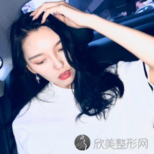 北京安贞杨媚双眼皮怎么样?隆鼻顾客术后反馈案例_收费标准