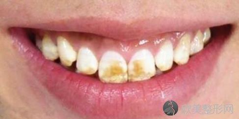 讨厌的氟斑牙是怎样长成的?又该怎样去除?