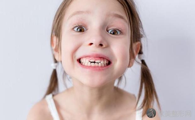 """孩子为什么容易蛀牙?4个""""黑锅"""",家长背着不冤!"""