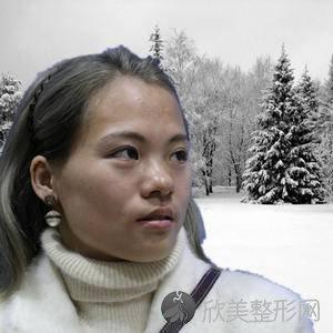 北京安贞医院李文志怎么样?自体脂肪填充预约方式_价格表