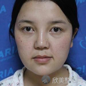 北京安贞医院杨媚双眼皮案例怎么样?下颌角地址_特色项目_整形价格表