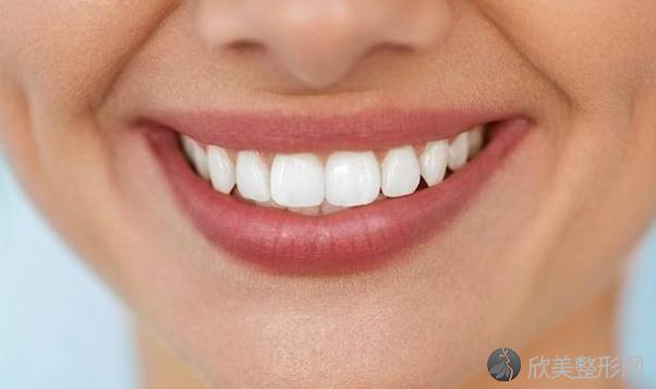 美白牙齿有五大误区,你踩了吗?
