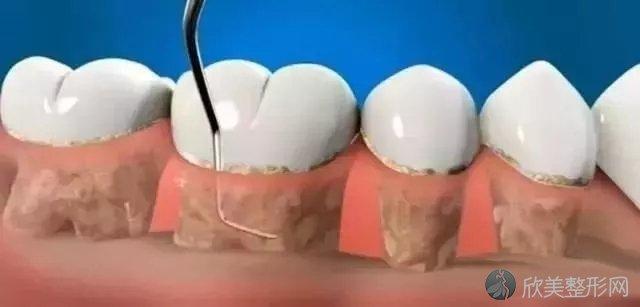 牙龈红肿、口臭?针对牙周炎,牙医都推荐龈下刮治!