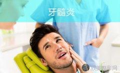 龋齿不及时治疗会拖出牙髓炎!
