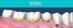 软垢与牙石的形成过程!