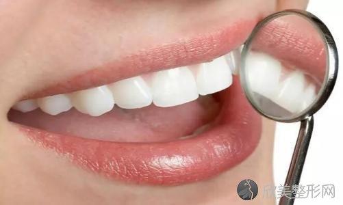 牙结石要怎么去除?