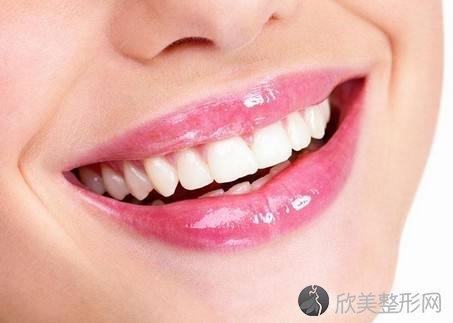 美容冠美白牙齿后要注意什么?