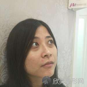 杭州静港医院林忠泵医生怎么样?去眼袋案例|价格表一起展出