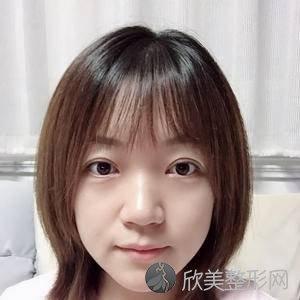 上海九院肖开颜双眼案例?双眼皮价格表_术前术后对比图