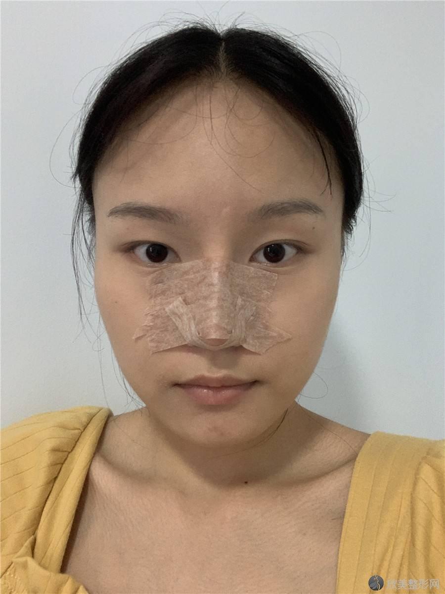 广东哪家医院做隆鼻术效果好?排行榜深美、莱美、佳丽等权威发布!!