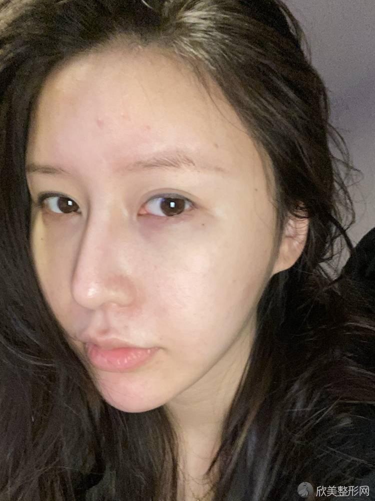 广东哪家医院做注射隆鼻手术最好?2021排行前10盘点!个个都是口碑好且人气高