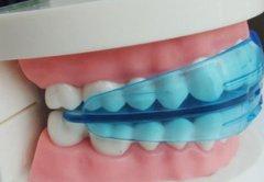 上海矫正牙齿价格恒高吗?揭秘上海牙齿矫正价格和影响价格因素有哪些!
