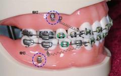 矫正两颗牙齿多少钱?这篇文章告诉你牙齿纠正的价格