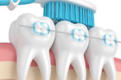 牙齿矫正有年龄限制吗?最佳矫正的年纪是?术后的效果怎么样?