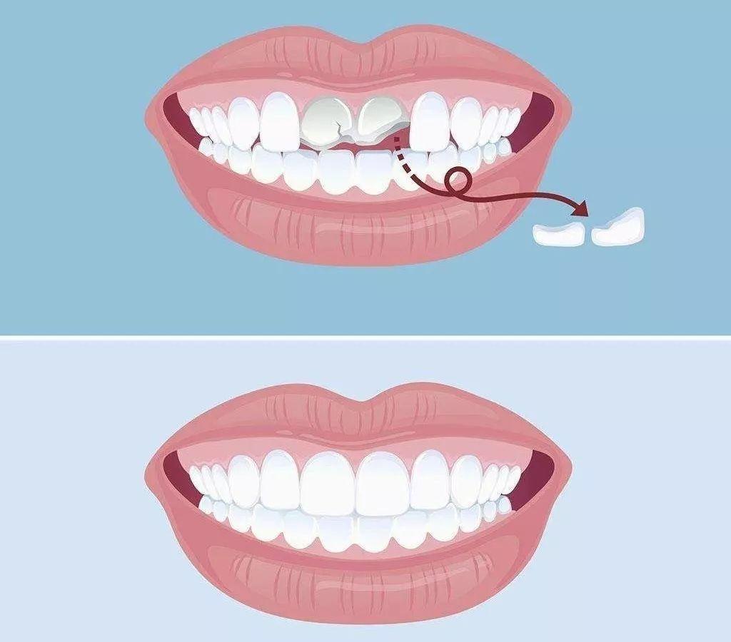 二氧化锆全瓷牙的修复效果好不好