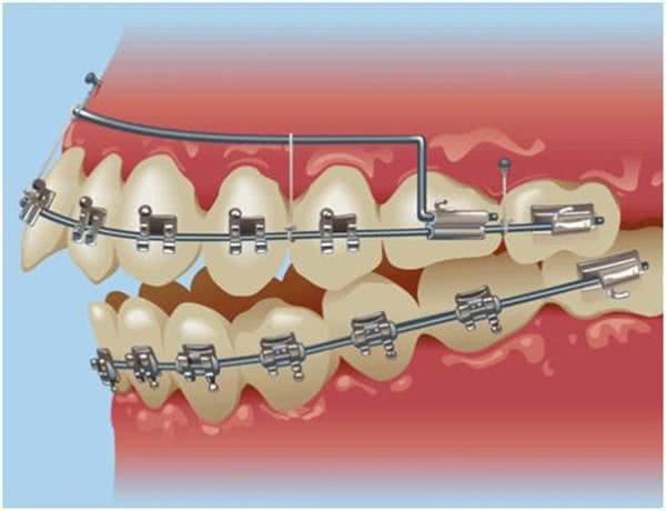 美容冠不适宜儿童牙齿矫正