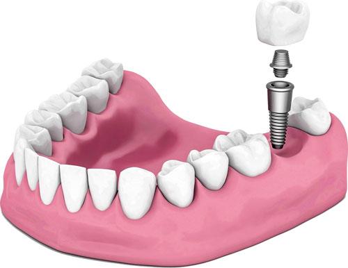 游离牙缺失会造成什么危害吗?